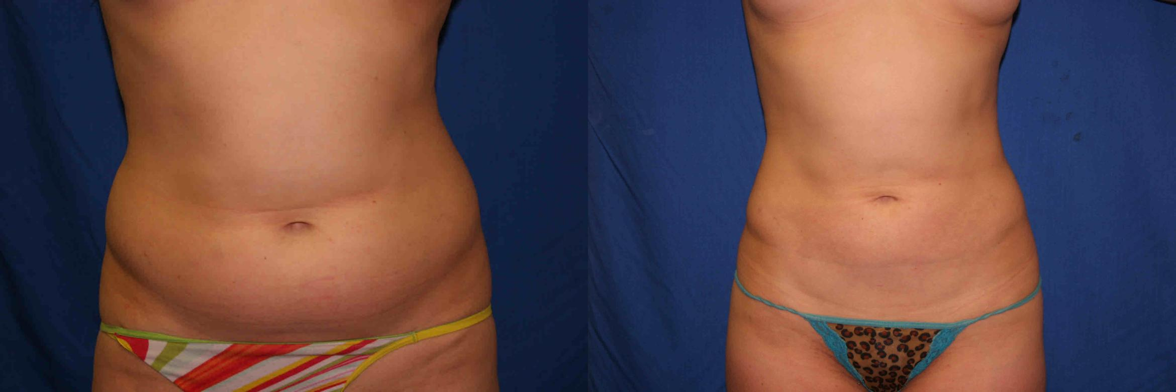 Liposuction Case 1 Before & After View #1 | Palo Alto, CA | Daryl K. Hoffman, MD
