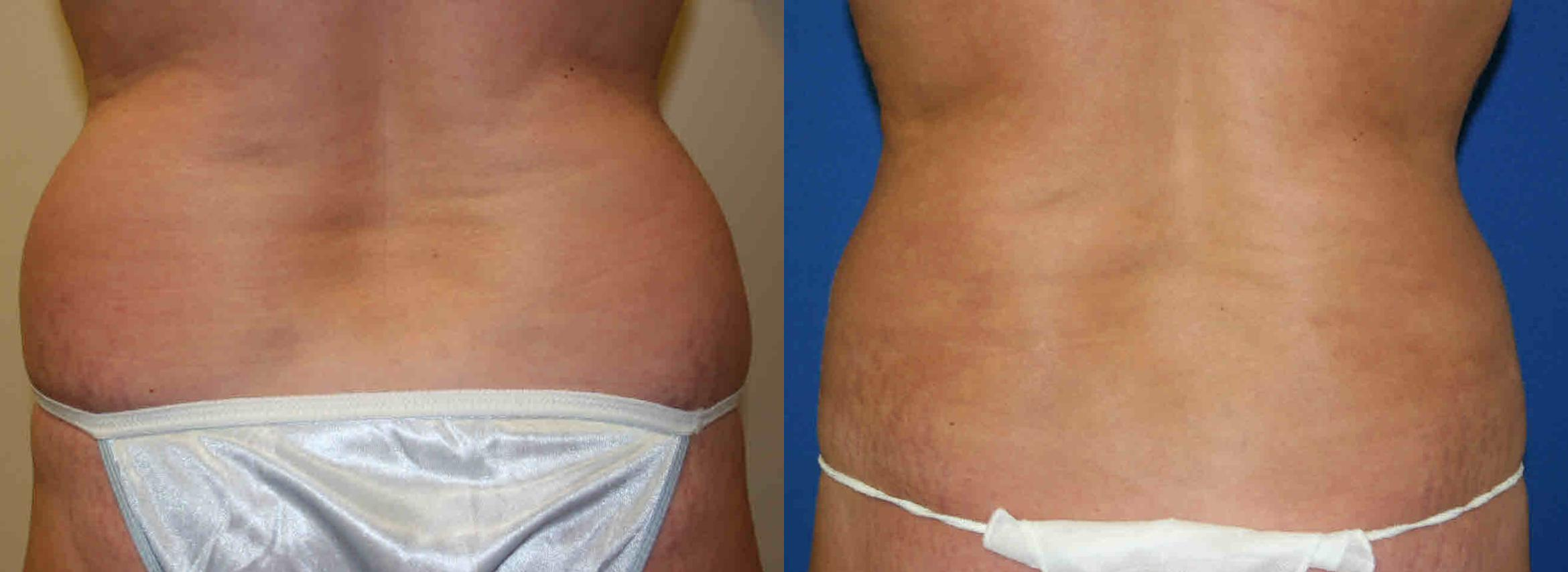 Liposuction Case 23 Before & After View #1 | Palo Alto, CA | Daryl K. Hoffman, MD