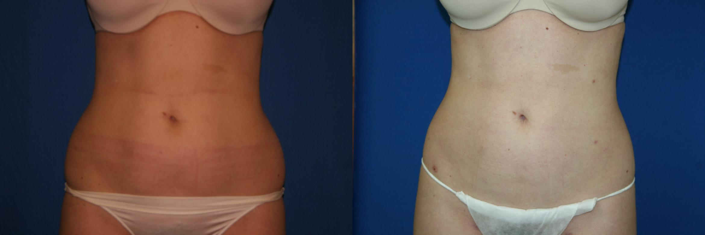 Liposuction Case 25 Before & After View #1 | Palo Alto, CA | Daryl K. Hoffman, MD