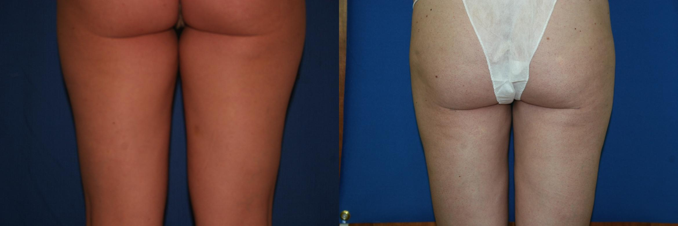 Liposuction Case 25 Before & After View #2 | Palo Alto, CA | Daryl K. Hoffman, MD