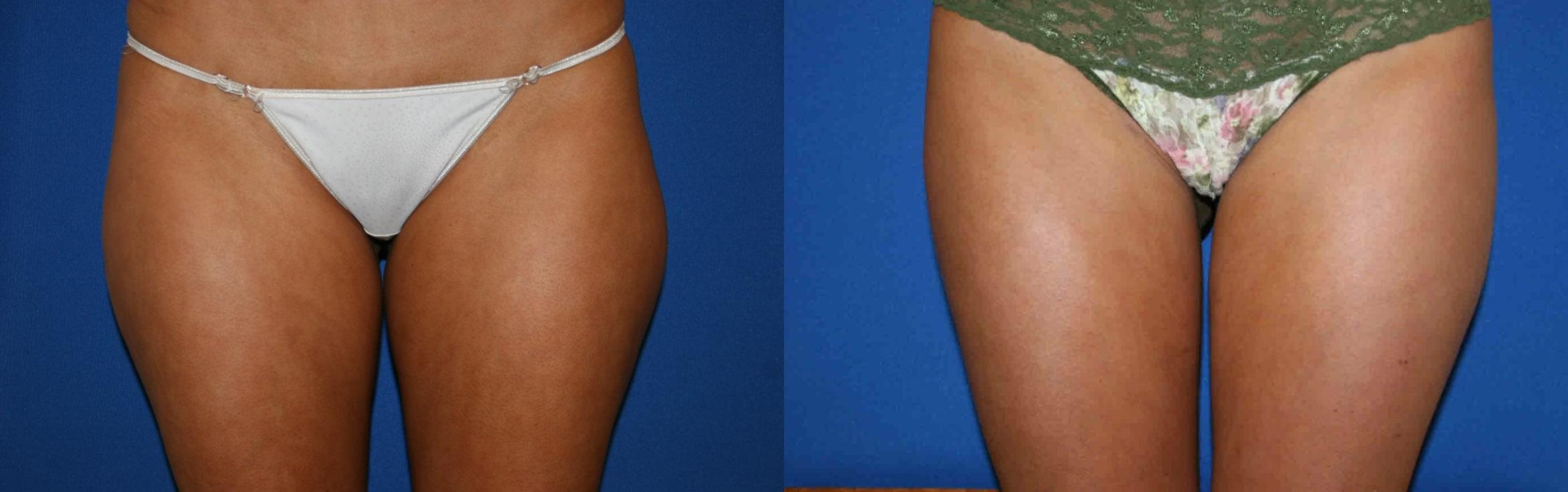Liposuction Case 27 Before & After View #1 | San Jose & Palo Alto, CA | Daryl K. Hoffman, MD