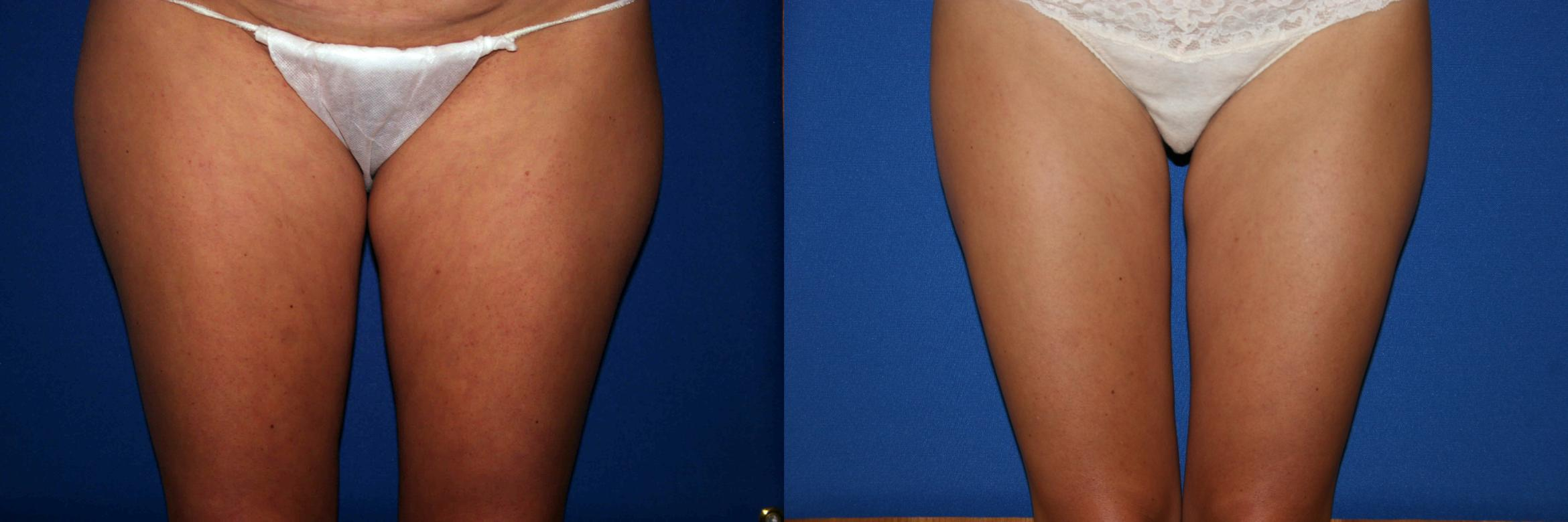 Liposuction Case 29 Before & After View #1 | Palo Alto, CA | Daryl K. Hoffman, MD