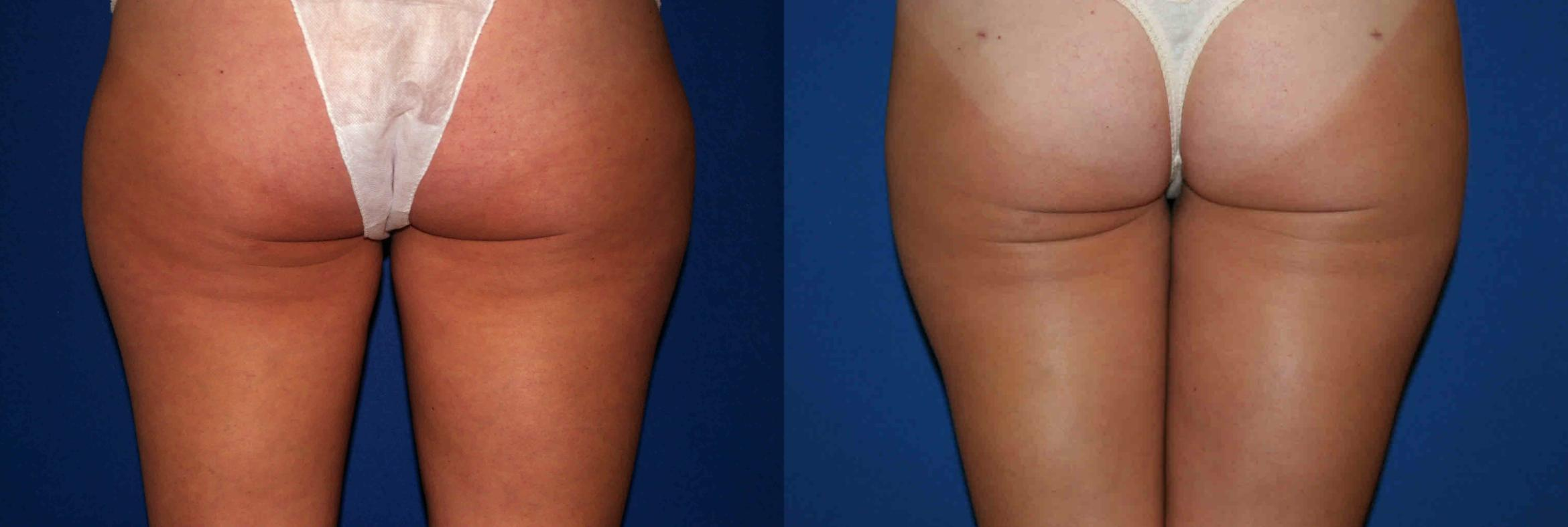 Liposuction Case 29 Before & After View #2 | Palo Alto, CA | Daryl K. Hoffman, MD