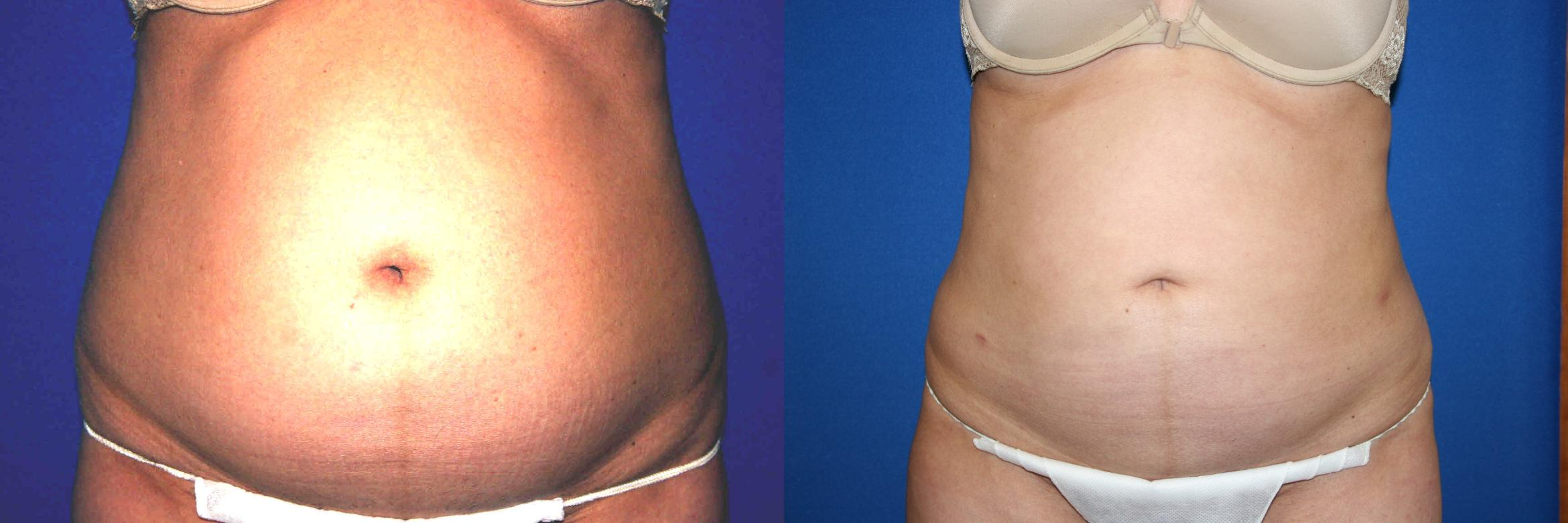 Liposuction Case 30 Before & After View #1 | Palo Alto, CA | Daryl K. Hoffman, MD