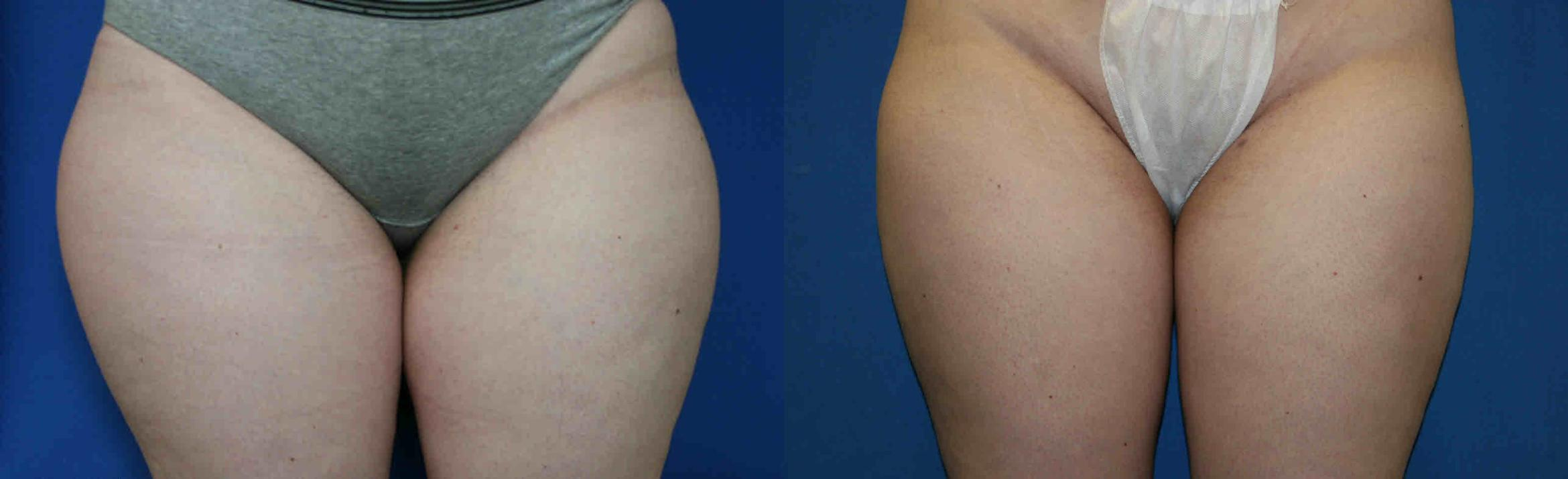 Liposuction Case 31 Before & After View #1 | San Jose & Palo Alto, CA | Daryl K. Hoffman, MD