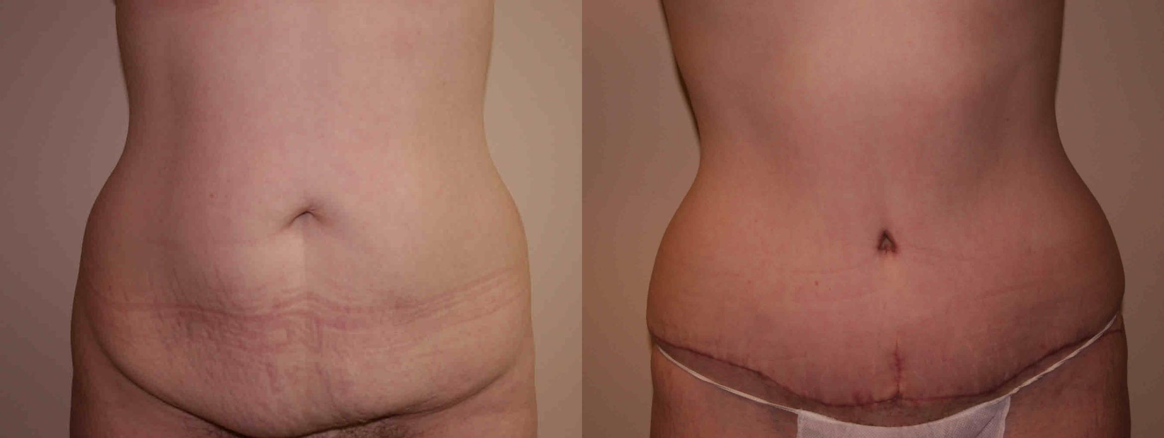 Tummy Tuck Case 35 Before & After View #1 | San Jose & Palo Alto, CA | Daryl K. Hoffman, MD