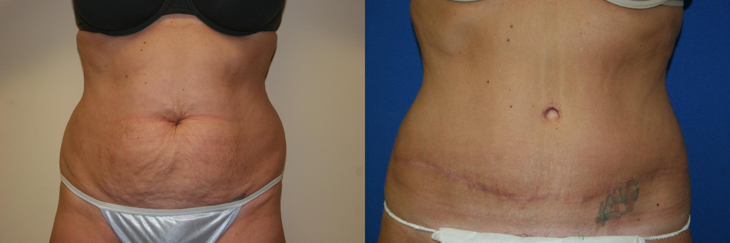 Tummy Tuck Case 38 Before & After View #1 | San Jose & Palo Alto, CA | Daryl K. Hoffman, MD