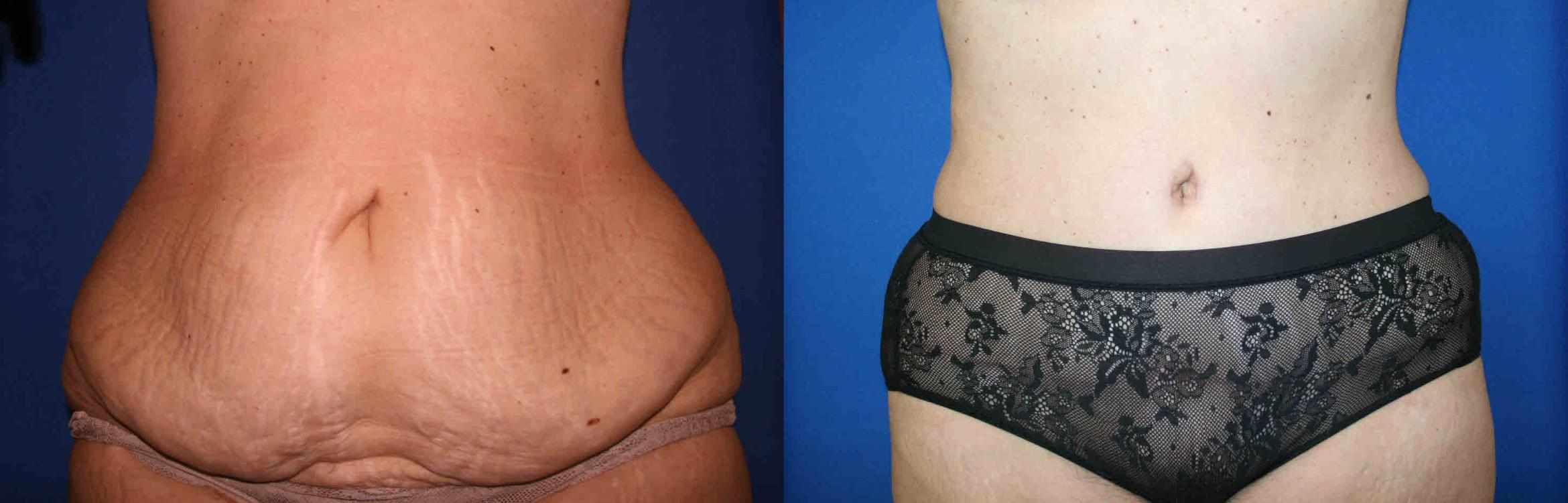 Tummy Tuck Case 39 Before & After View #1 | San Jose & Palo Alto, CA | Daryl K. Hoffman, MD
