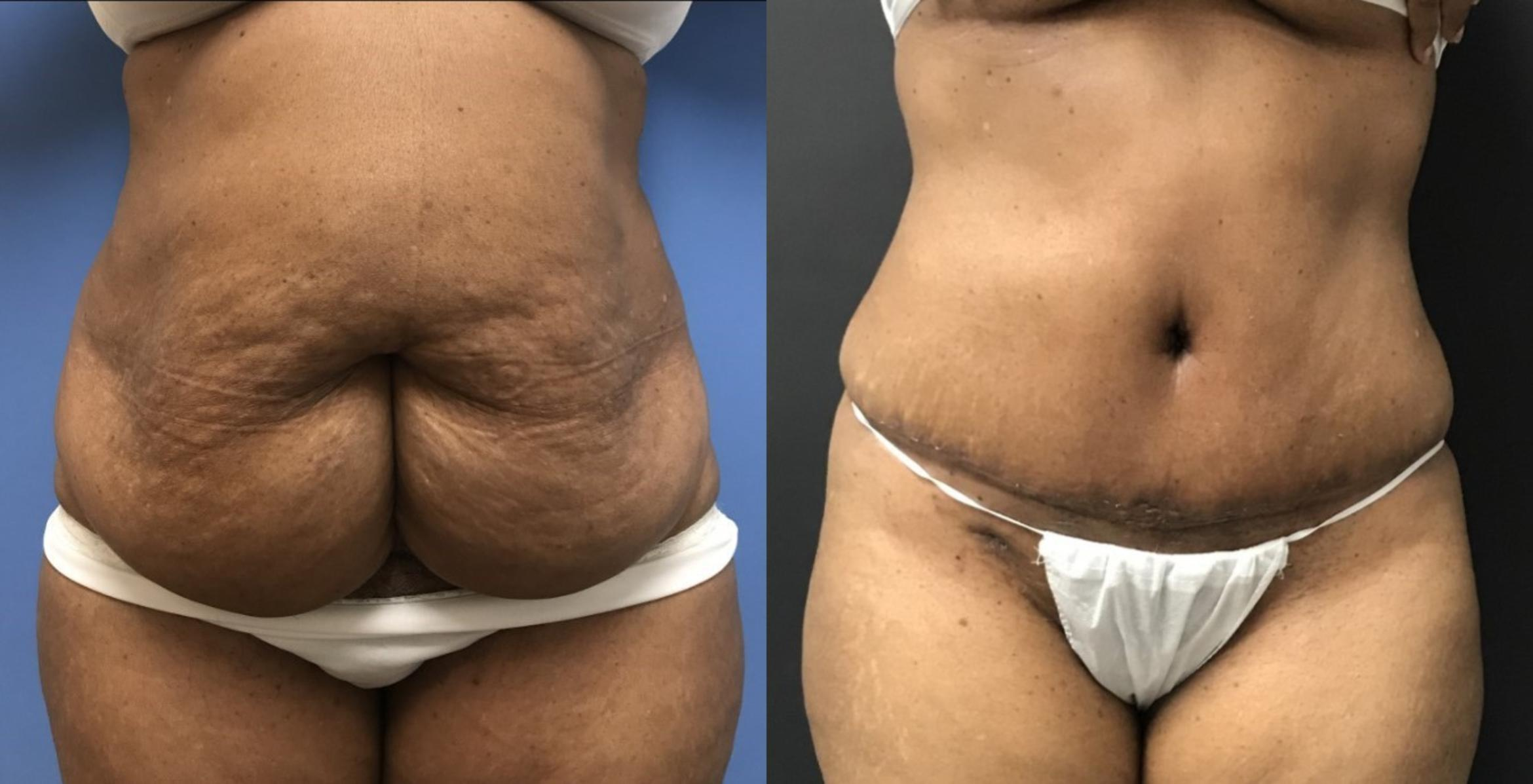 Tummy Tuck Case 63 Before & After View #1 | San Jose & Palo Alto, CA | Daryl K. Hoffman, MD
